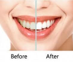 teeth whitening kits side
